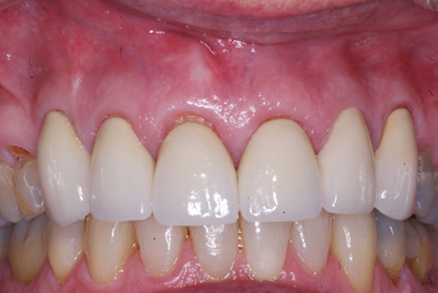 Cosmetic Crowns: After