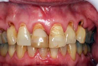 Cosmetic Crowns: Before