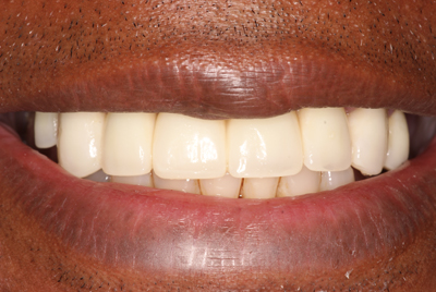 Cosmetic Dentures: After