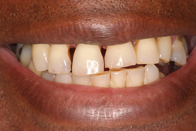 Cosmetic Dentures: Before