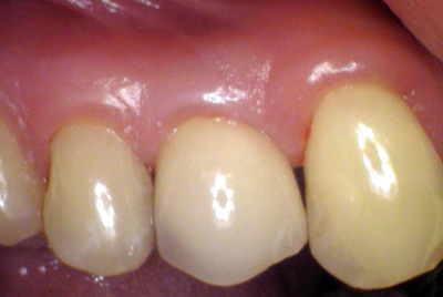 Dental Implants: After