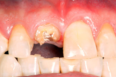 Dental Injury: Before