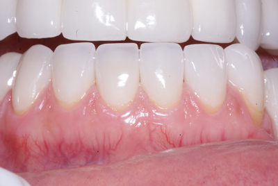 Porcelain Veneers: After