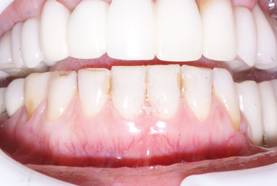 Porcelain Veneers: Before